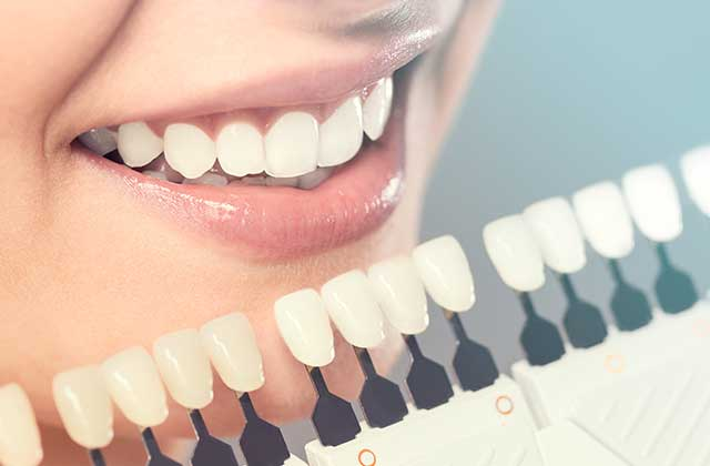 https://gpcdental.com/wp-content/uploads/2017/10/services_tooth_colored_fillings.jpg